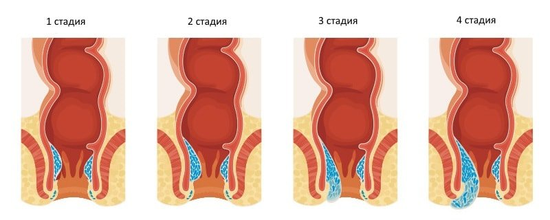 Стадии патологического процесса