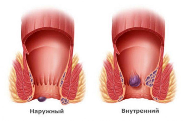 Показания к применению Гепатромбина