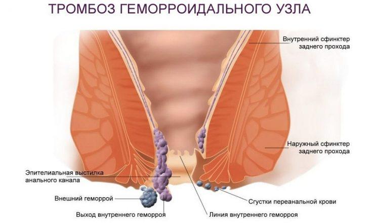Тромбированный геморрой