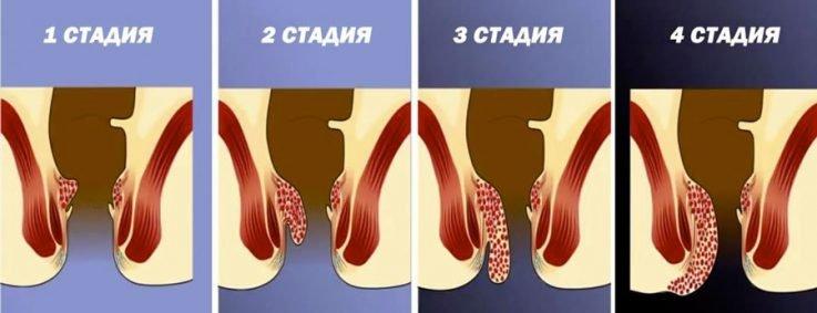 Запущенный геморрой симптомы лечение фото