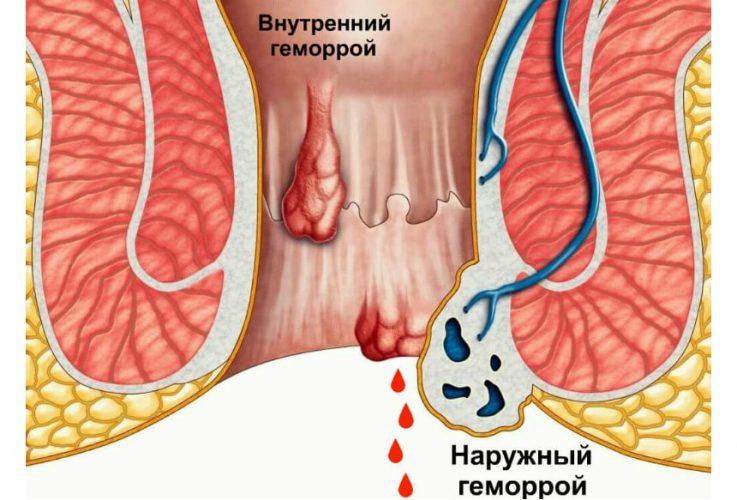Методы лечения геморроя солью