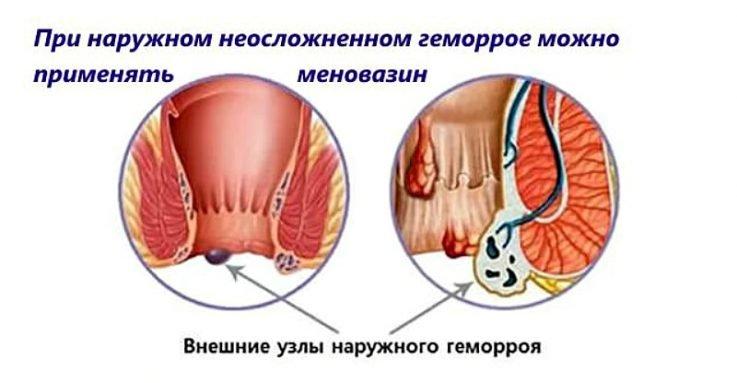 Применение Меновазина при гемморое