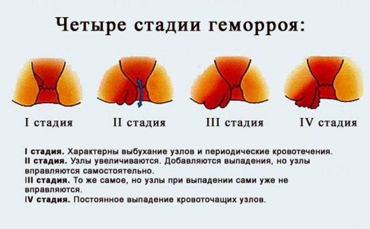 Лечение при геморрое