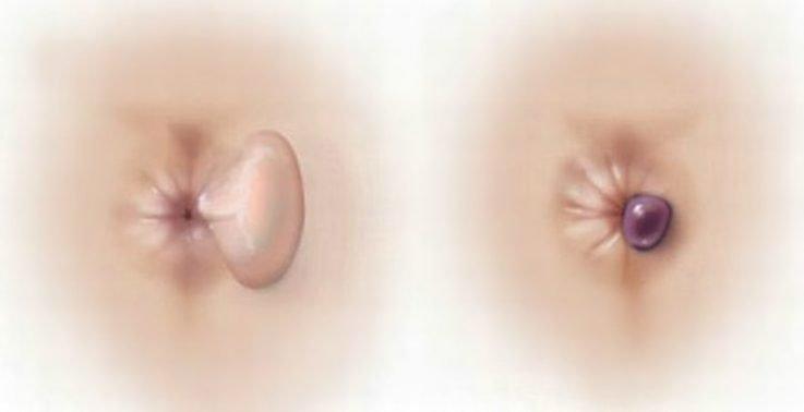Лечебный эффект препарата Боро Плюс при геморрое