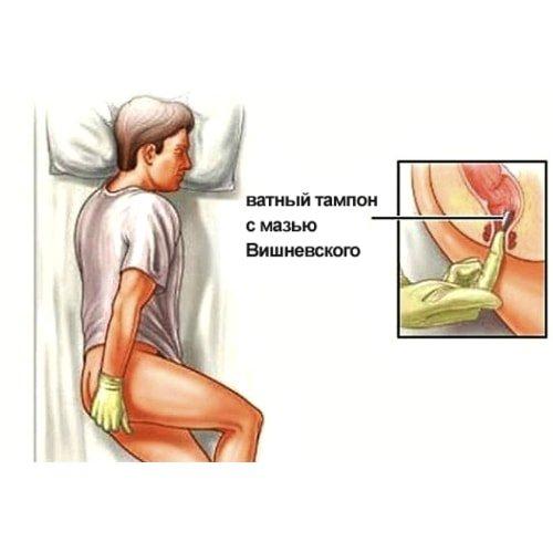 Лечение геморроя при грудном вскармливании препараты свечи мазь