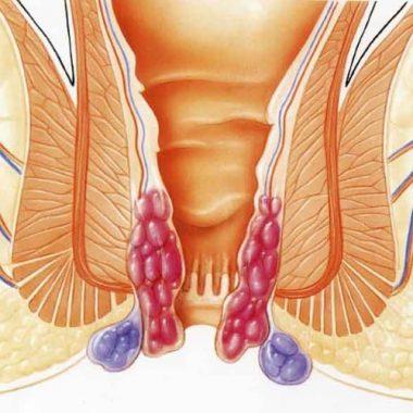 Острая и хроническая формы недуга