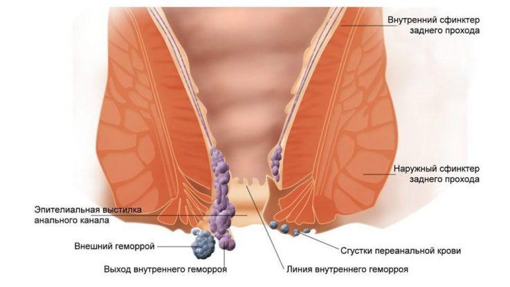 Что такое геморроидальный узел