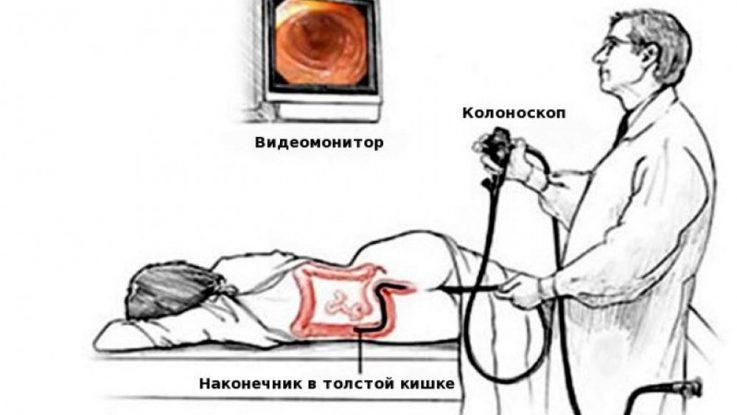 колоноскопия кишечника при геморрое