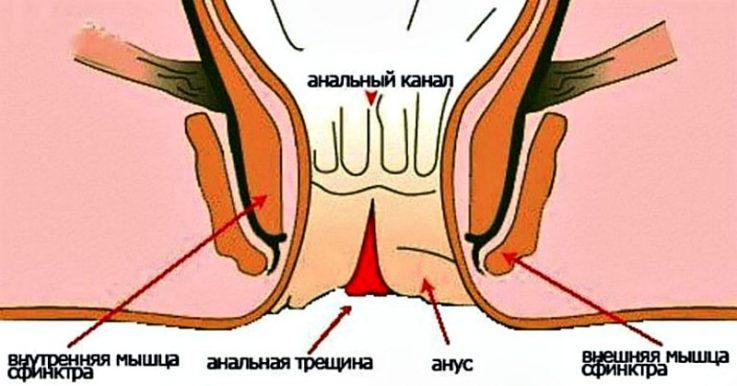 Последствия неправильного массажа
