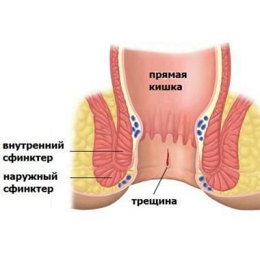 Анальные трещины в прямой кишке