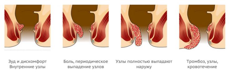 Лечение геморроя