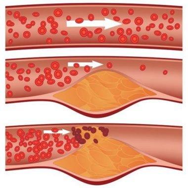 Непроходимость крови во время геморроя