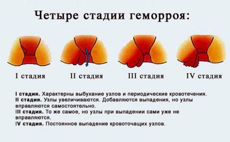 Показания к применению свечей Проктозан