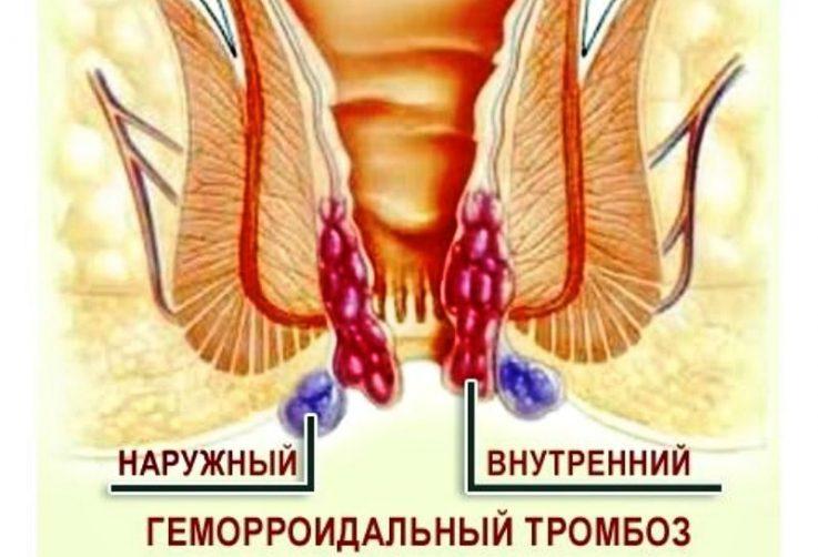 Препарат Траумель при геморрое