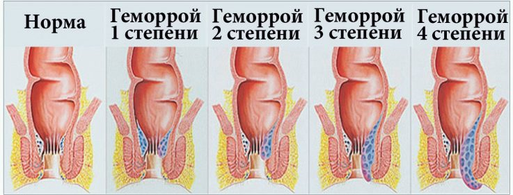 геморрой возникновение лечение